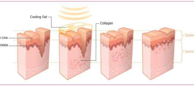 Anti Ageing Skin Malaysia